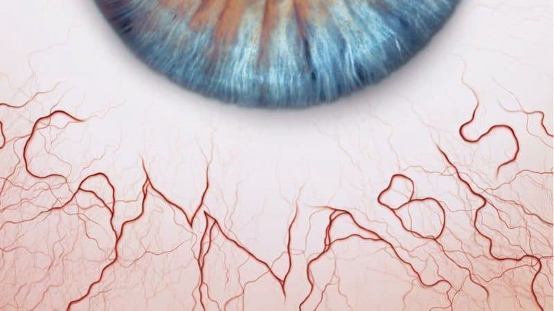 Why Marijuana Makes Your Eyes Red